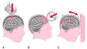 obat gumpalan darah di kepala